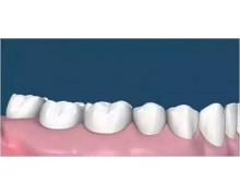 小鸡宝宝考考你洗牙能让牙齿变白吗 2020年8月1